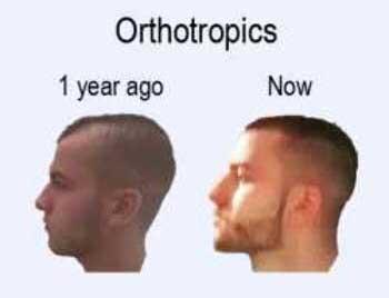 Изменения челюстей через год