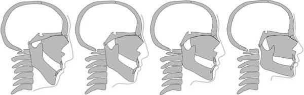 Изменение челюстей